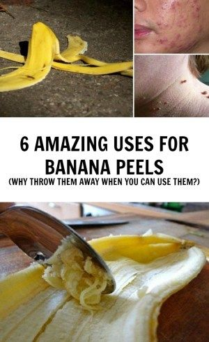 The benefits of bananas are well known, but the potent properties of their peel are no less important. We all throw it away after eating the banana, but people in some countries, such as India use the nutritional benefits of the banana skin by eating it for decades. Here is now to use the banana ...