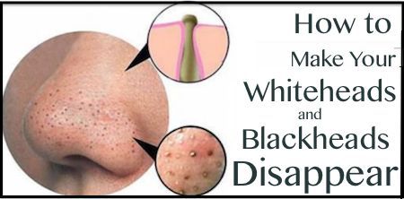 Menghilangkan bintik hitam 3 Cara Mudah Menghilangkan Bintik Hitam Dan Blackhead di Rumah 2d79ccf5992e44cc788232050f16fd9b