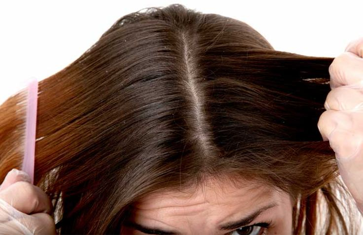 Troubled by Dandruff? Here is what to do…