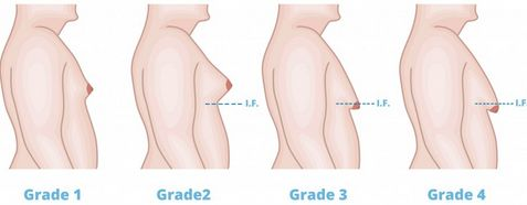 Gynecomastia Surgery UK is effective breast enlargement surgery, helping patients get rid of male boob without side effects as we use advanced equipment.