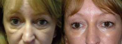 How You Can Receive A Natural Facelift Employing Simple Face Reflexology Gymnastics