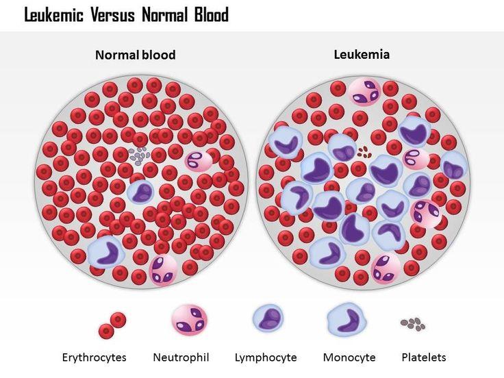 Gejala Kanker Darah Pada Anak