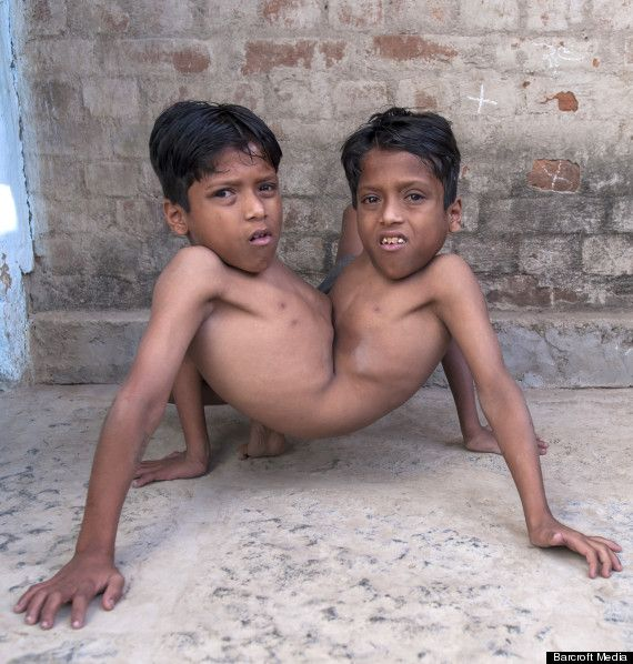 This Siamese twin, Shivanath and Shivram Sahu, are the latest set of gods that are worshiped in India, a country known for its superstitious beliefs and wide range of mini gods.