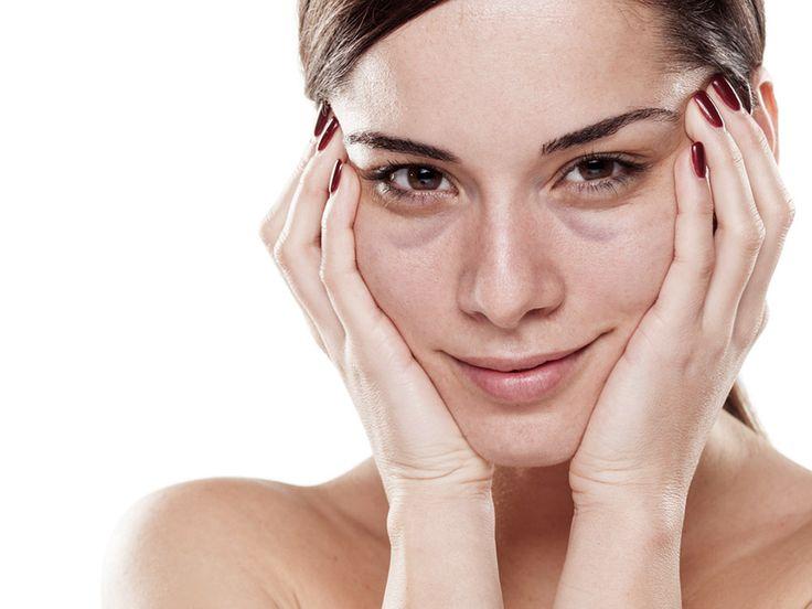 Augenringe sind nicht nur Folgen von Schlafmangel - sondern sehr oft angeboren. Wir zeigen dir was wirklich gegen die genetischen, blauen Augenringe hilft.