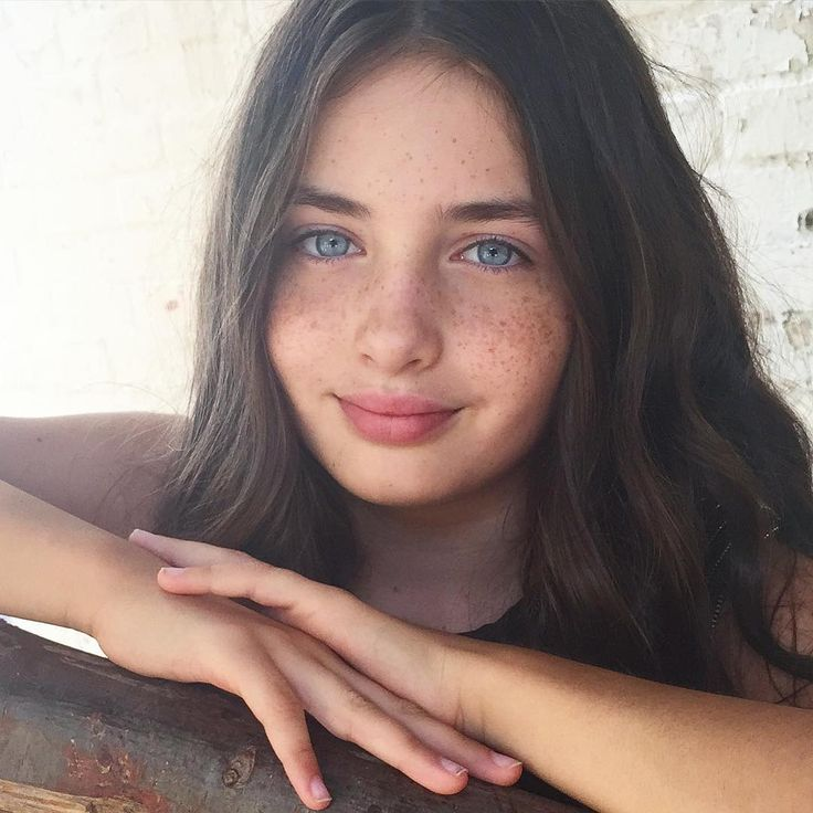 namorada freckles
