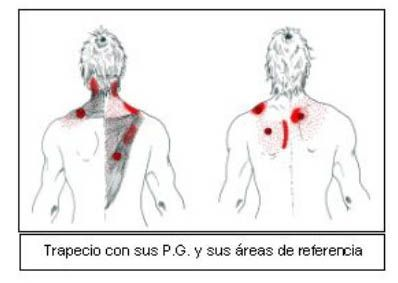 Aquí tenemos puntos gatillo del trapecio, y sus áreas de dolor referido. Presionando en el centro del músculo, puede dar un dolor referido que llegue, entre otros sitios, a la zona alta de la nuca.
