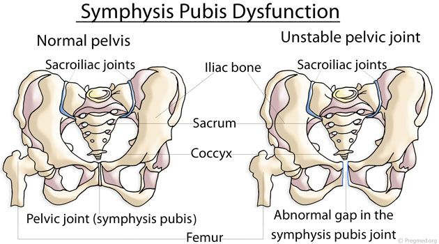 Symphysis Pubis Dysfunction, also known as SPD, is a common painful condition associated with pregnancy in which the ligaments responsible for the proper alignment of your pelvic bone become relaxed and stretchy. As a result, the symphysis pubis or the pelvic joint becomes unstable, causing moderate to severe pain along with certain other symptoms. What Causes Symphysis …