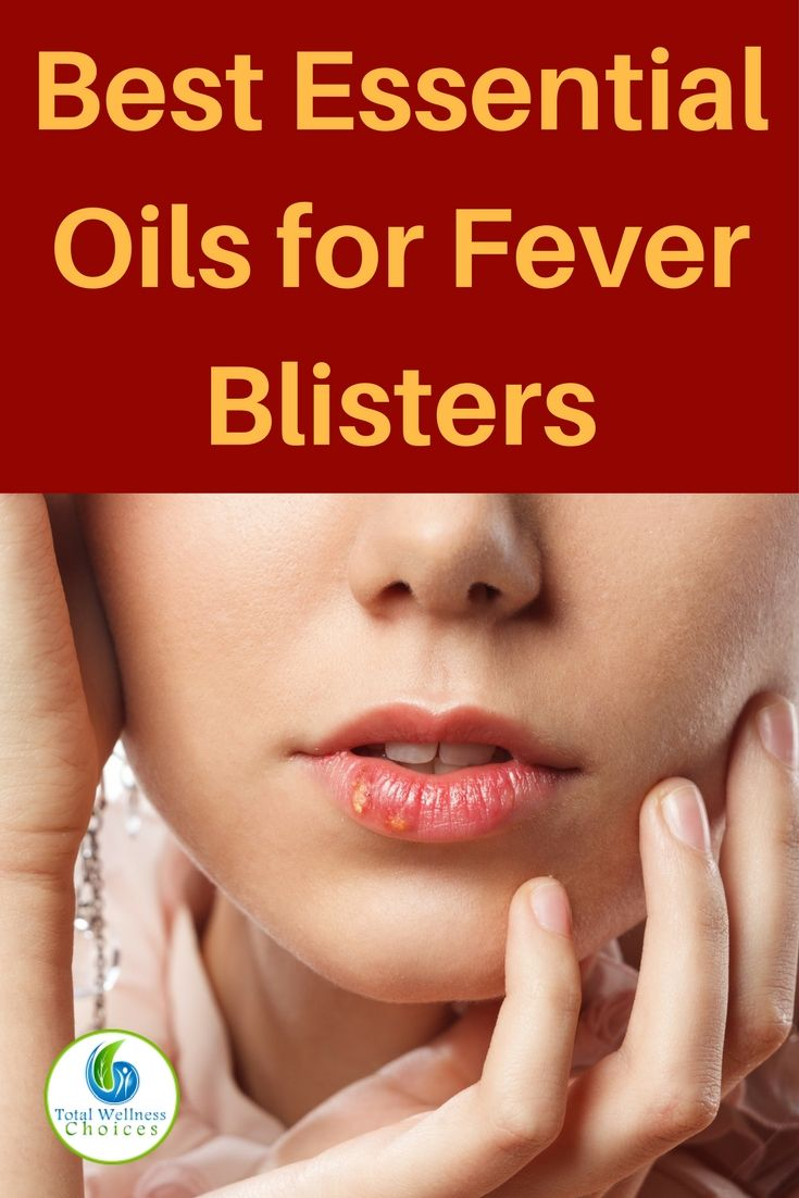 Here are the 5 best essential oils for fever blisters you can use to treat cold sores naturally and effectively! via @wellnesscarol