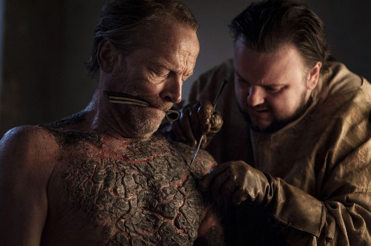 Game of Thrones season 7: Sam Tarly actor discusses filming that disgusting Greyscale scene with Ser Jorah