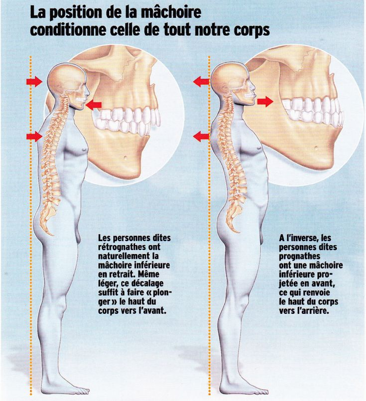 Le masseur effectif dosteokhondroza