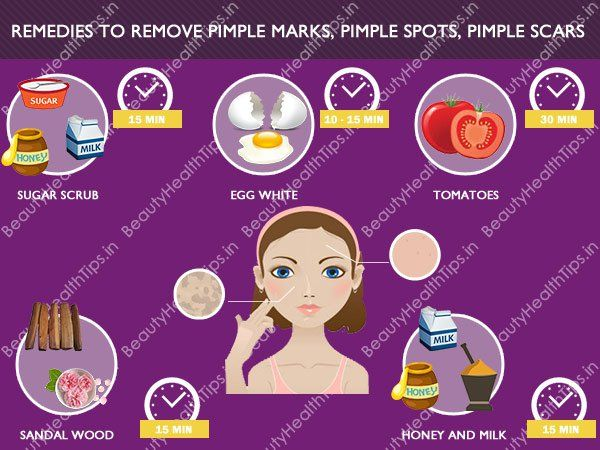 Best 25 pimple marks ideas on pinterest pimples on body black hindi tips to remove pimple marks pimple spots ccuart Image collections