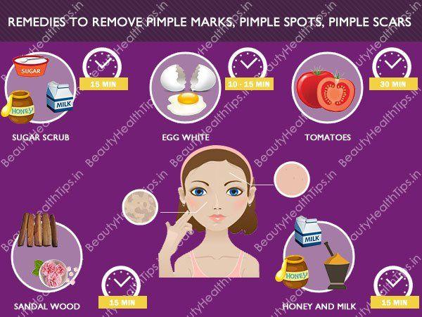 Best home remedies to remove Pimple marks, Pimple spots, Pimple scars