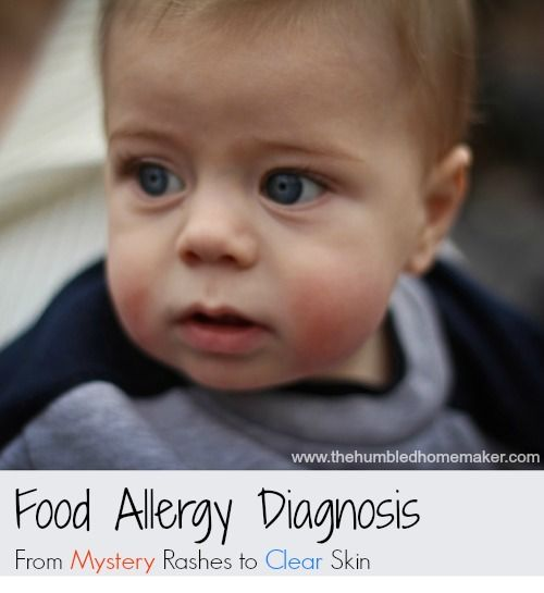 Food Allergy Diagnosis (how one mom discovered her son's food allergies) - thehumbledhomemaker.com