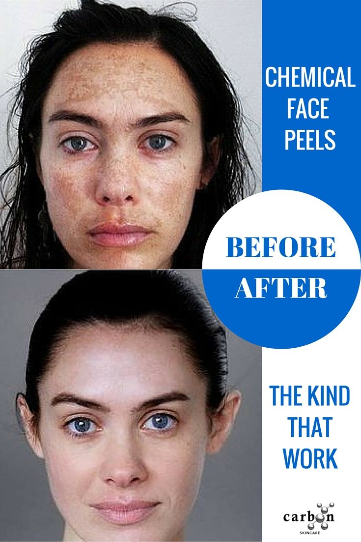 Chemical Face Peels Before and After's.  Real People.  Real Results http://www.amazon.com/dp/B00M0RLN1G