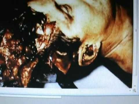 Real celebrity morgue photos