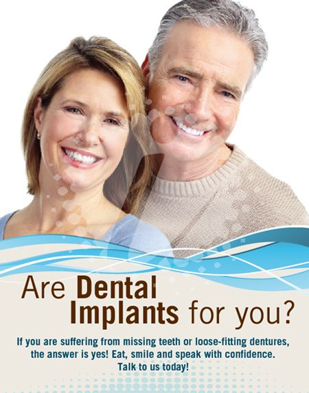 36 best images about Dental Implant Adverts on Pinterest