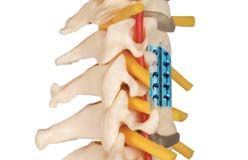 ETHAN – Anterior Spacer Cervical - http://www.gescoworld.com/ethan-anterior-spacer-cervical.php