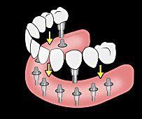 Here's What New Dental Implants Should Cost You - View Pricing & Dentist Information