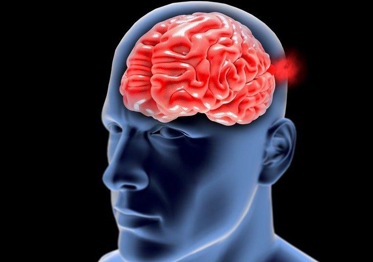 Cómo detectar un aneurisma cerebral | Salud - Todo-Mail