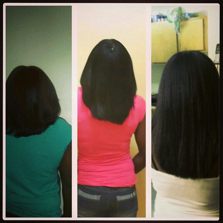 Hairfinity before and after progress HairHealthy