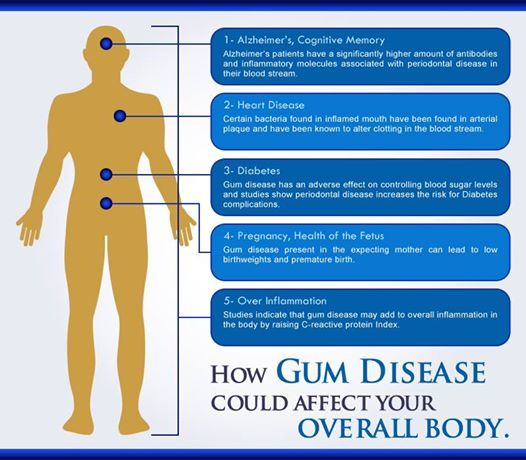 How Gum Disease could affect your overall body