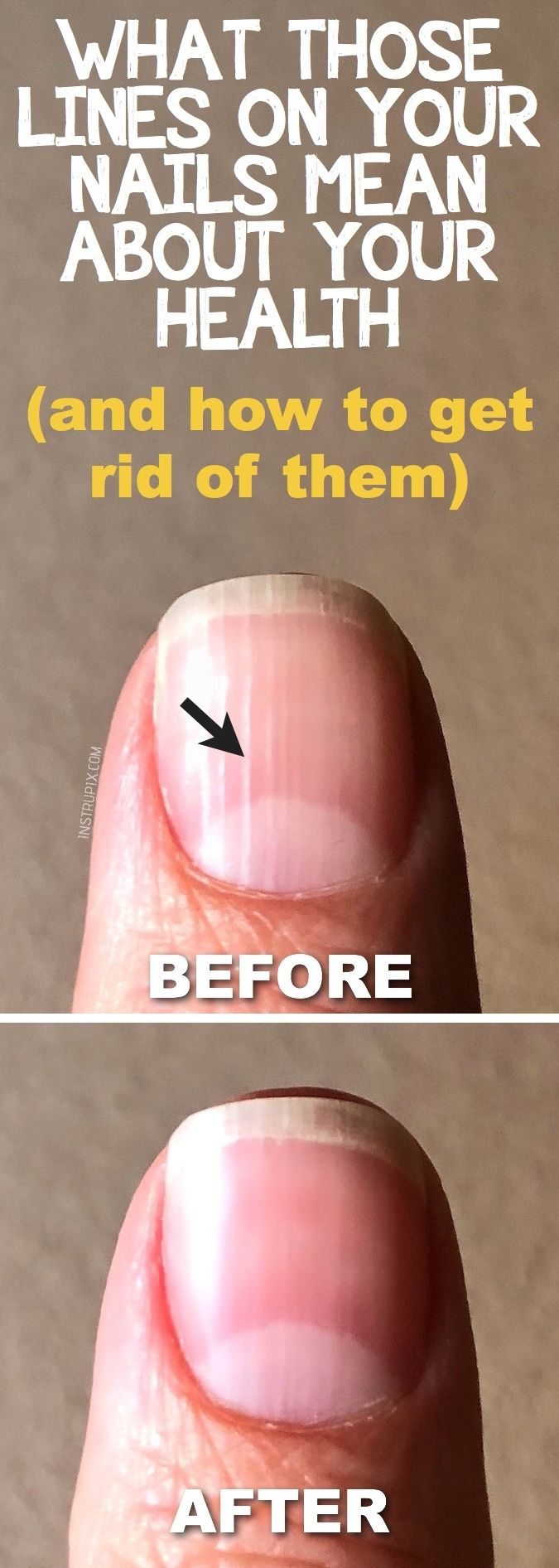 What are those vertical lines on your nails, and what it means about your health? Don't forget about those hands! This is a useful beauty hack every girl should know. Instrupix.com