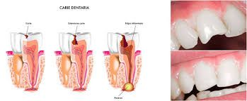 What is tooth decay? Tooth decay is damage that occurs when germs (bacteria) in your mouth make acids that eat away at a #tooth. It can lead to a hole in the tooth, called a #cavity. If not #treated, tooth decay can cause #pain, infection, and tooth loss.