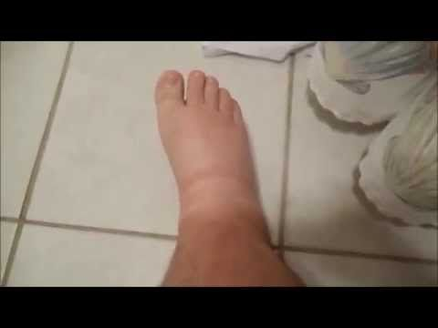 Cure Foot Cramps Naturally