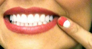 1000 Ideas About White Teeth Tips On Pinterest White
