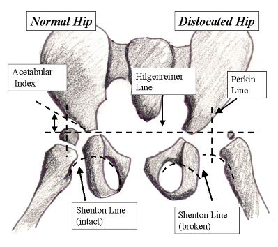 a study of hip dislocation The lancet choice is a new payment option that gives you the freedom and flexibility to access any 5 premium articles of your choice from across the lancet family of journals - all for a one-off payment of $4900 usd simply purchase your lancet choice pass from the summary or full text page of an article you wish to access this will count as the.