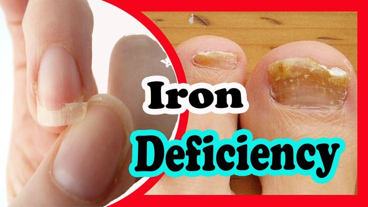 Signs and Symptoms of Iron Deficiency You Should Not Ignore