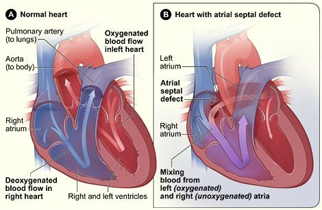 Atrial septal defect (ASD) – Causes, Symptoms, Diagnosis, Treatment and Ongoing care - Congenital defect or opening in the atrial septum allowing flow of blood between the 2 atria  Read more: http://health.tipsdiscover.com/atrial-septal-defect-asd-causes-symptoms-diagnosis-treatment-and-ongoing-care/#ixzz2XphlrXBm