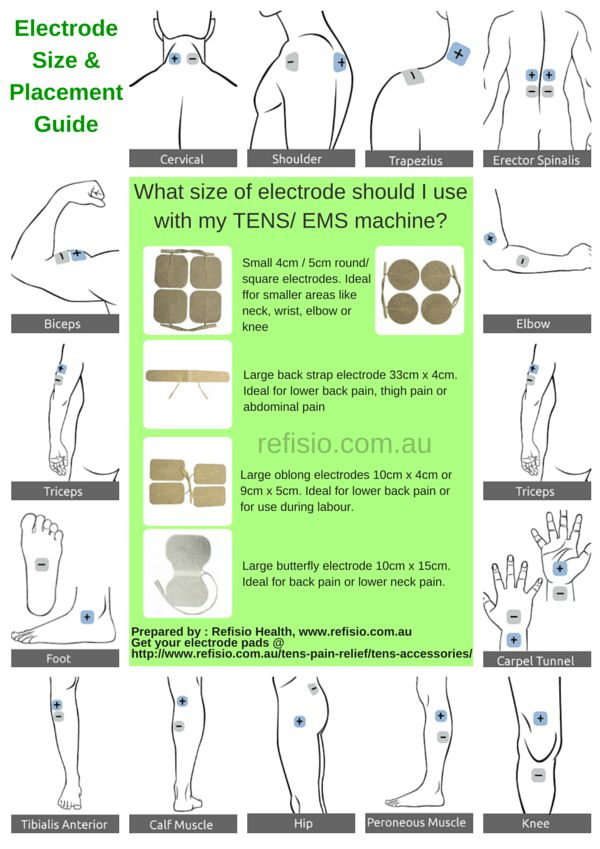 30 Best Images About Tens Machines Amp Electrode Placement