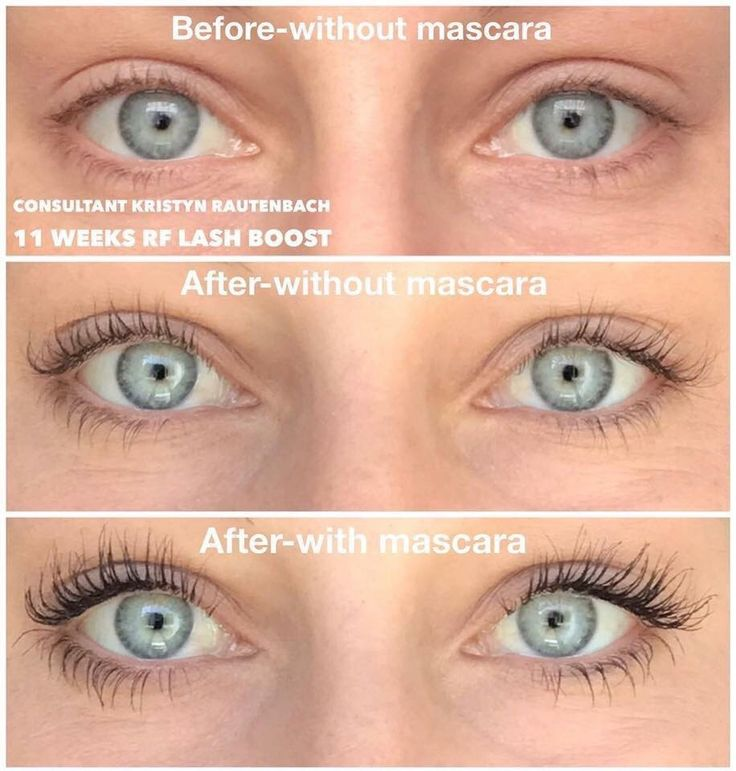 "You guys! Check out Kristyn's AMAZING results with Lash Boost!  ""I was a little skeptical of what Lash Boost would do for me since I already considered my lashes to be pretty long. Well, RF proved me wrong! Now, I have butterfly lashes  and I'm obsessed with them- even with the cheapo drug store mascara that I use!""  Lash Boost is a treatment, not a mascara. Just one swipe a night brings you closer to fuller, longer and darker looking lashes."