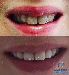 Bad teenage teeth - dental solution with CEREC Veneers