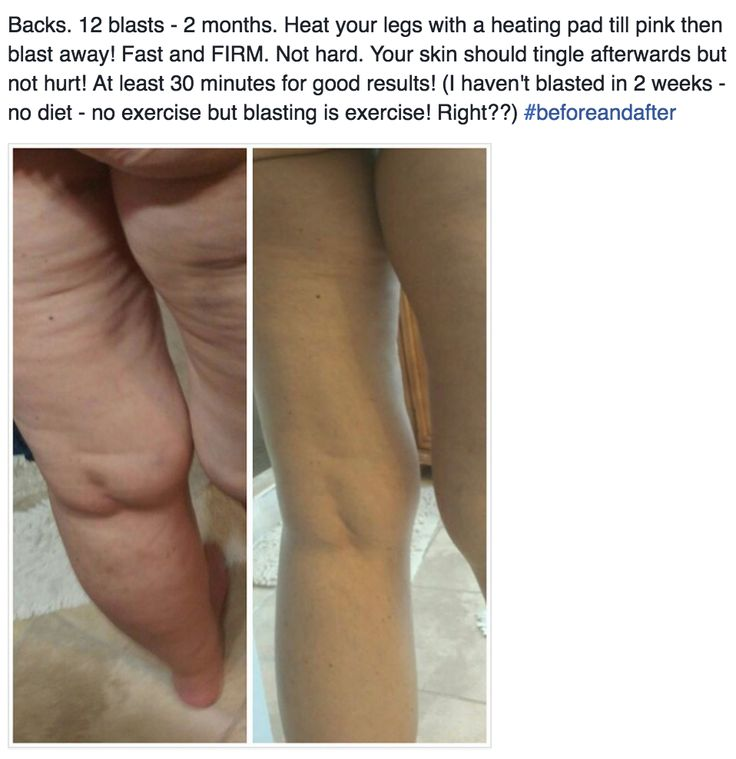 """She is looking GOOOOD! No matter how severe the fascial distortions, the FasciaBlaster® will make your skin SMOOTH, healthy and """"cellulite"""" FREE!!! #Cellulite is a connective tissue problem! The FasciaBlaster® is a HANDHELD TOOL that is like dry brushing, but for the inside layers and much more aggressive and 100% effective no matter how big or small you are! Everyone is addressing skin and #fat, when cellulite is a FASCIA problem!"""