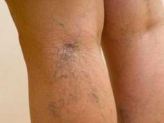 7 remèdes pour se débarrasser des petites varices noté 5 - 2 votes Les varicosités sont de petites veines superficielles anormalement dilatées qui sont visibles à travers la peau. Plus ou moins fines, elles traduisent une fragilité de la circulation veineuse. On les retrouve au niveau des membres inférieurs, et très souvent sur le visage où …