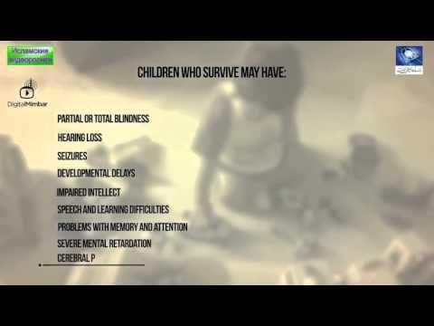 Почему нельзя трясти ребёнка. К чему это приводит. - YouTube