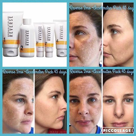 Rodan + Fields Reverse Regimen is for the appearance of brown spots, dullness and discoloration. Clean the slate and see a brighter future for your skin. Message me on pinterest @ R+Fskincare101.