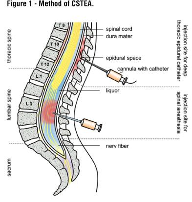 Epidural vs spinal anesthesia. Epidural: headache is not experienced. It's often used during labor/delivery, and surgery in the pelvis and legs. Spinal anesthesia: puncture in the Dura (covering over the spinal cord). It's often used for genital, urinary tract, or lower body procedures. Spinal and epidural anesthesia have fewer side effects and risks than general anesthesia (asleep and pain-free). Patients usually recover much faster and can go home sooner.