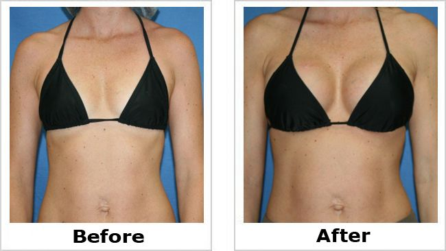 Pin On Cosmetic Surgery-4586