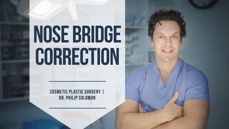 Nose Bridge Correction | Cosmetic Plastic Surgery | Dr. Philip Solomon