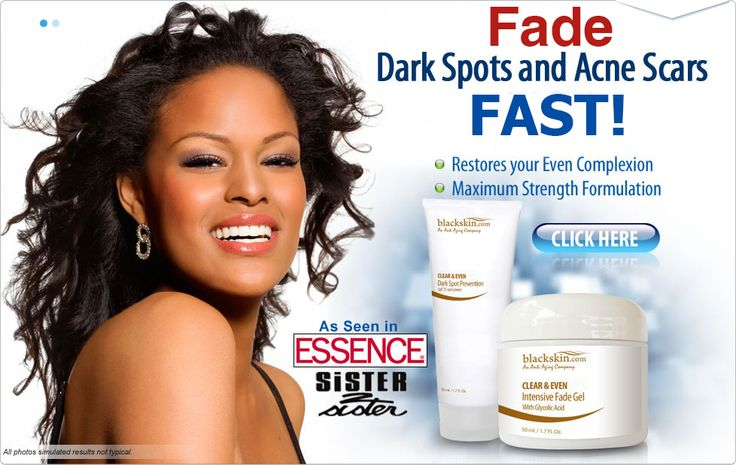 Black Skin Care. Products for Dark Marks and Dark Spots