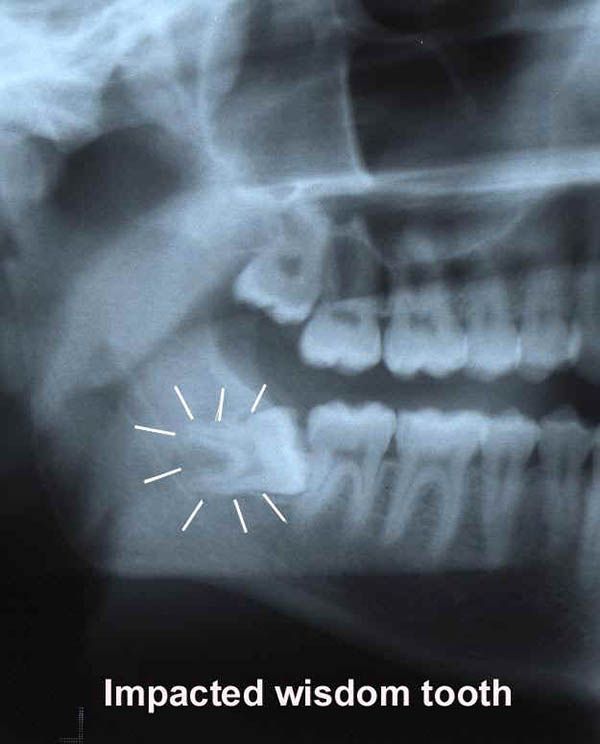 Wisdom tooth extraction price : Aaa seaworld san diego