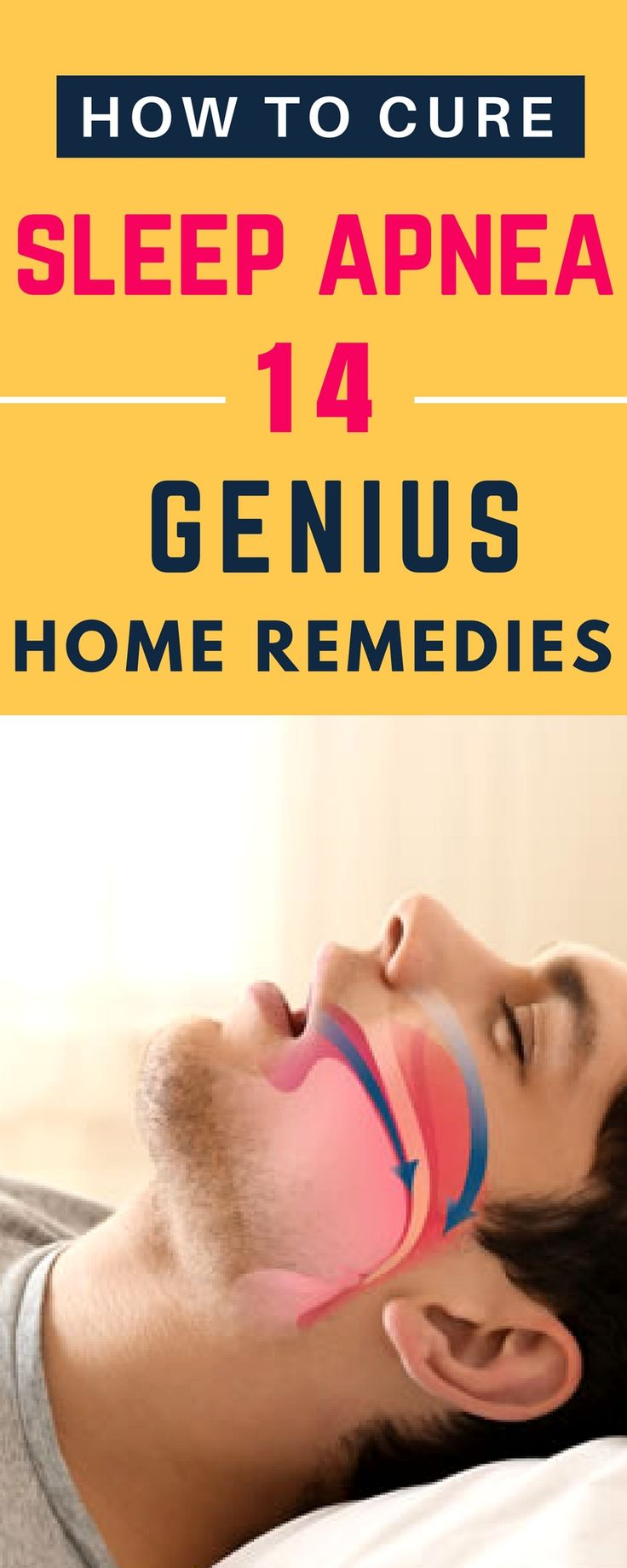 These 14 Remedies From Your Kitchen Will Cure Sleep Apnea. Get rid of the CPAP today. #sleepapnea #sleepdisorders #insomnia