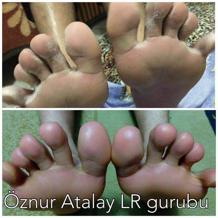 Ayak mantarı LR Ürünleri ile tedavi edilmesi sonucu
