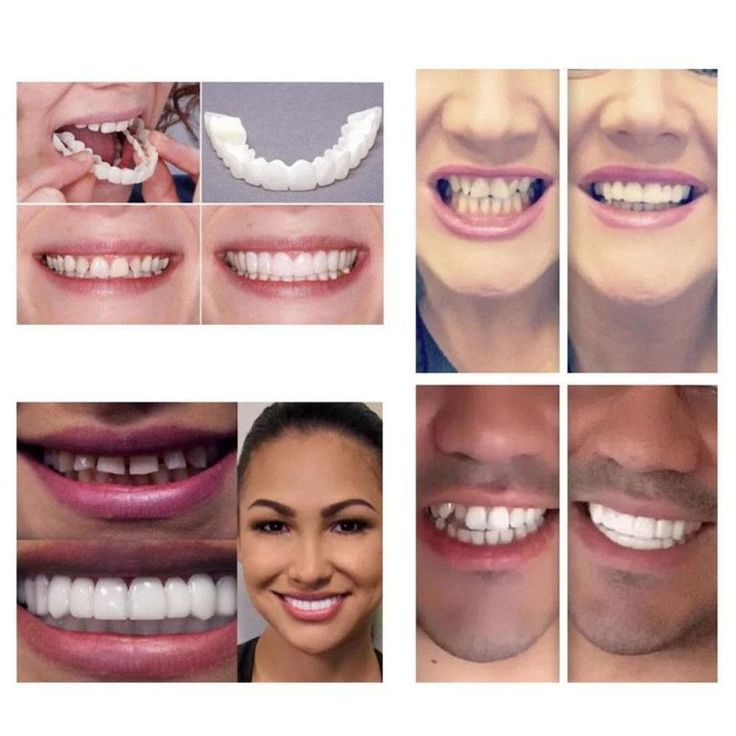 Perfect Smile Snap On Braces SkinnyBunny in 2020