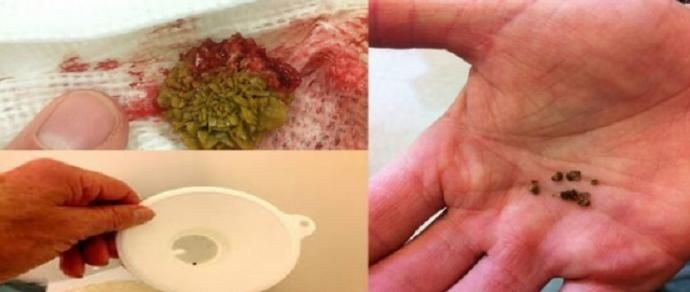 Assista às pedras saindo do seu fígado e vesícula com este surpreendente remédio - http://comosefaz.eu/assista-as-pedras-saindo-do-seu-figado-e-vesicula-com-este-surpreendente-remedio/