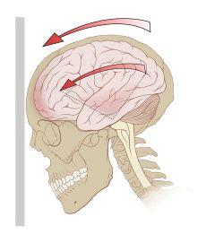 Concussion graphic #braininjury