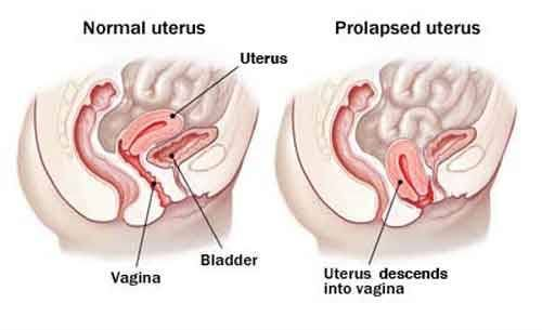 Think Twice Before Choosing Surgical Treatment For Uterus Prolapsed